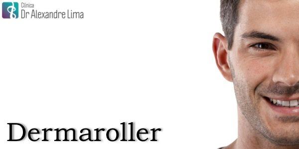 Dermaroller-Dr-Alexandre-Lima-Dermatologista-Belo-Horizonte-BH-Homem