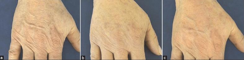 Radiesse-Hidroxiapatita de calcio-Preenchimento-Maos-Dermatologista-Belo Horizonte-BH