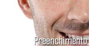 Preenchimento-BH-Belo-Horizonte-Dermatologista-Dr-Alexandre-Lima