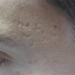 Cicatrizes-Acne-Dr-Alexandre-Lima-Dermatologista-Belo-Horizonte-BH-02