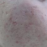 Cicatrizes-Acne-Dr-Alexandre-Lima-Dermatologista-Belo-Horizonte-BH-03