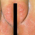 assadura-dermatite-fraldas-Dr-Alexandre-Lima-Dermatologista-Belo-Horizonte-BH