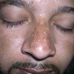 Melasma-Tratamento-Laser-Spectra-Elektra-Vektra-Dr-Alexandre-Lima-Dermatologista-Belo-Horizonte-BH