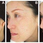 Melasma-Tratamento-Laser-Spectra-Elektra-Vektra-Dr-Alexandre-Lima-Dermatologista-Belo-Horizonte-BH-Antes-Depois