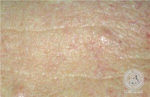 Hiperplasia-Sebacea-03-Dr-Alexandre-Lima-Dermatologista-BH-Belo-Horizonte