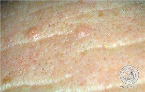 Hiperplasia-Sebacea-04-Dr-Alexandre-Lima-Dermatologista-BH-Belo-Horizonte