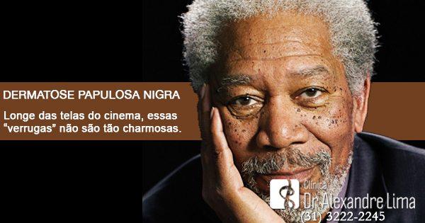 Dermatose-Papulosa-Nigra-Dr-Alexandre-Lima-Dermatologista-Belo-Horizonte