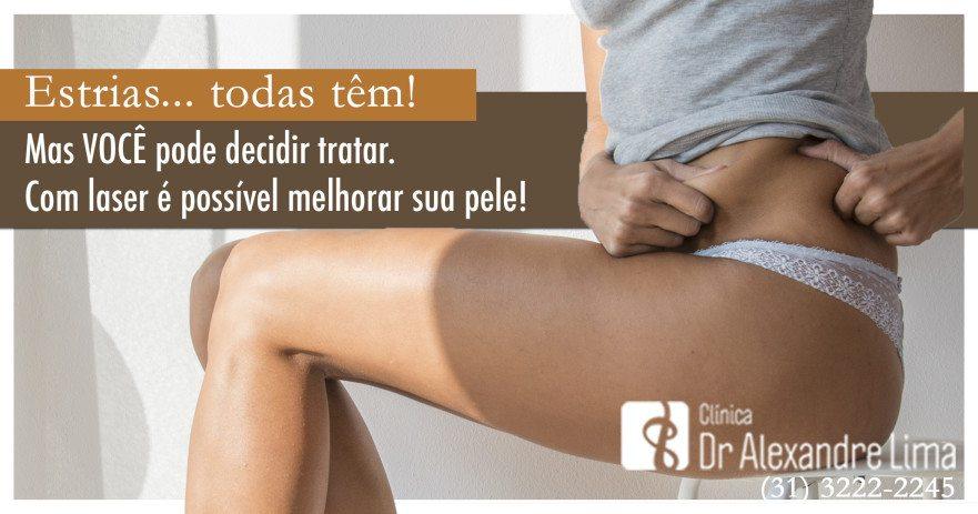 Estrias-Tratamento-Laser-Dr-Alexandre-Lima-Dermatologista-Belo-Horizonte-BH