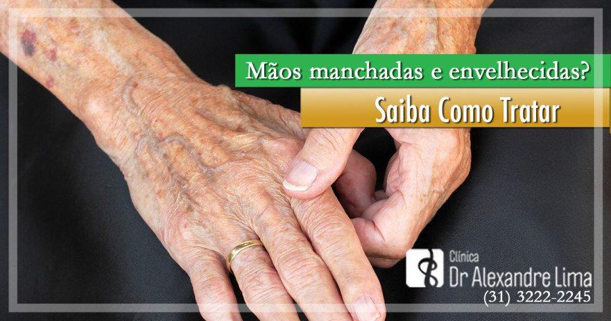Mãos-Envelhecidas-Dr-Alexandre-Lima-Dermatologista-Belo-Horizonte-BH