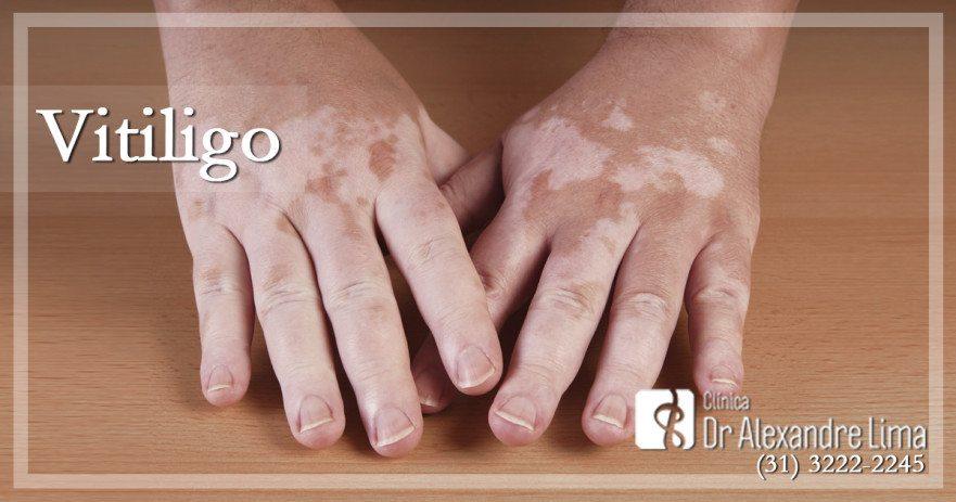 Vitiligo-Dr-Alexandre-Lima-Dermatologista-Belo-Horizonte-BH