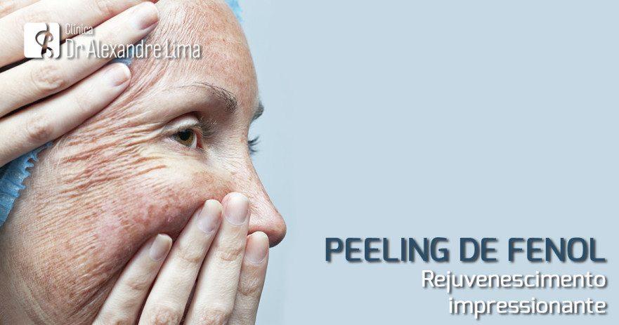 peeling-de-fenol-bh-dr-alexandre-lima-dermatologista-bh-belo-horizonte
