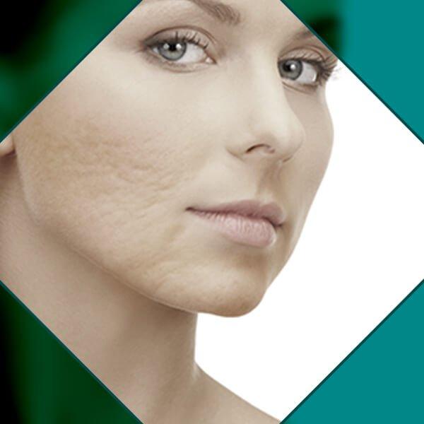 Imagem Tratamento para cicatrizes de Acne